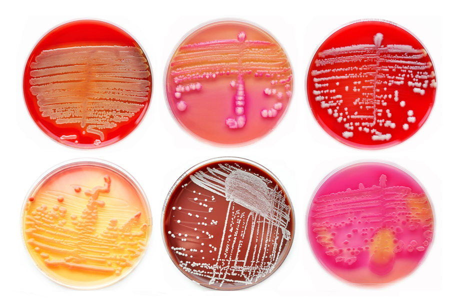 Microbial Risk Management During Cleanroom Operations